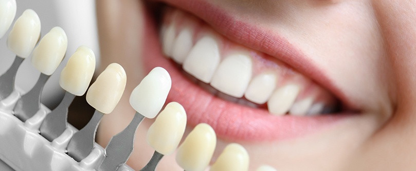 cosmetic-dentistry-charlotte-nc