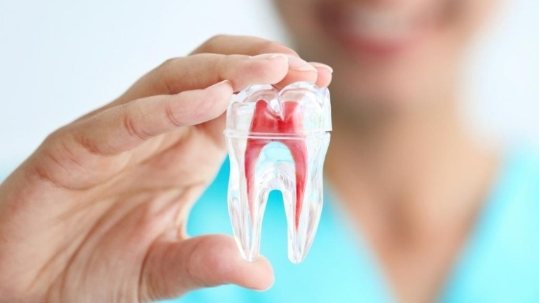 root-canal-treatment-guildford